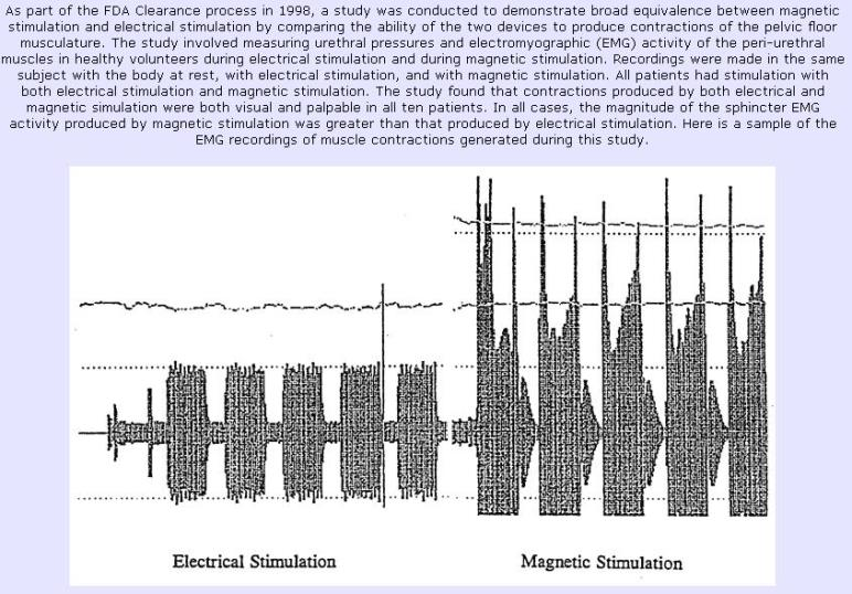 Magnetic vs. Electric Stimulation